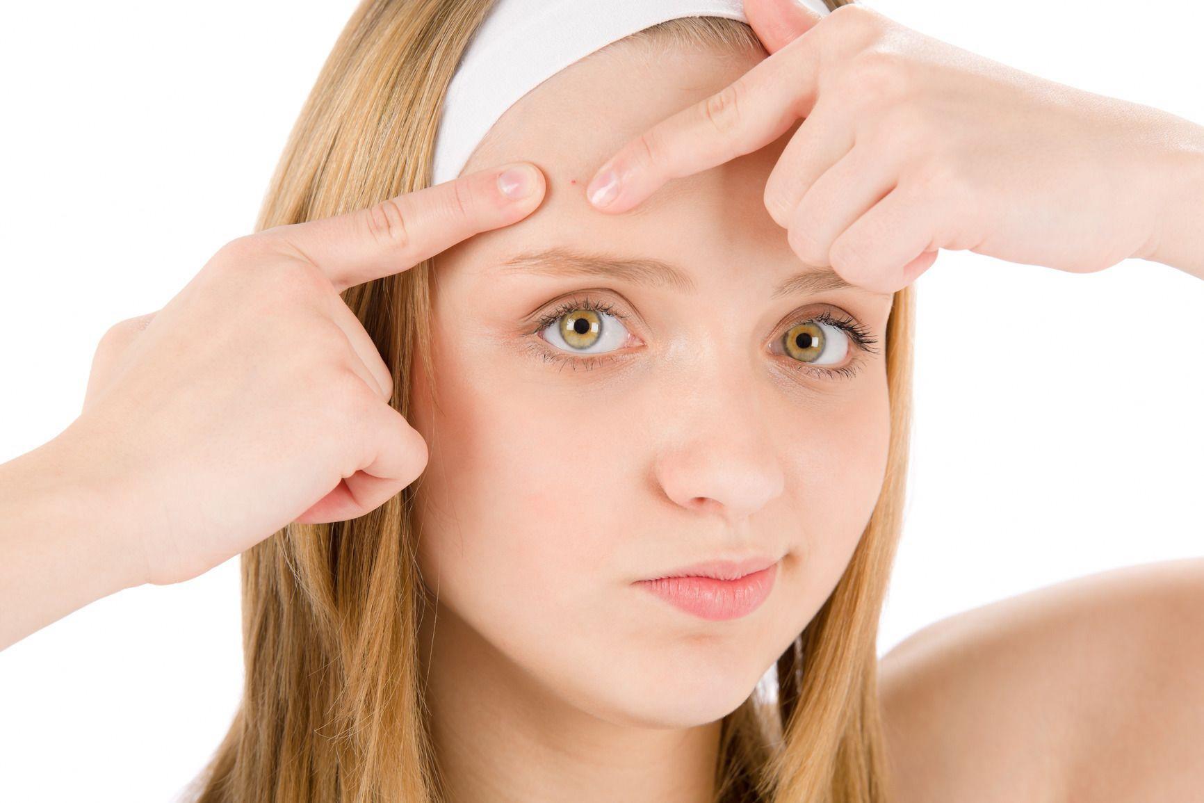 L'  acne incubo degli adolescenti e spesso anche degli adulti