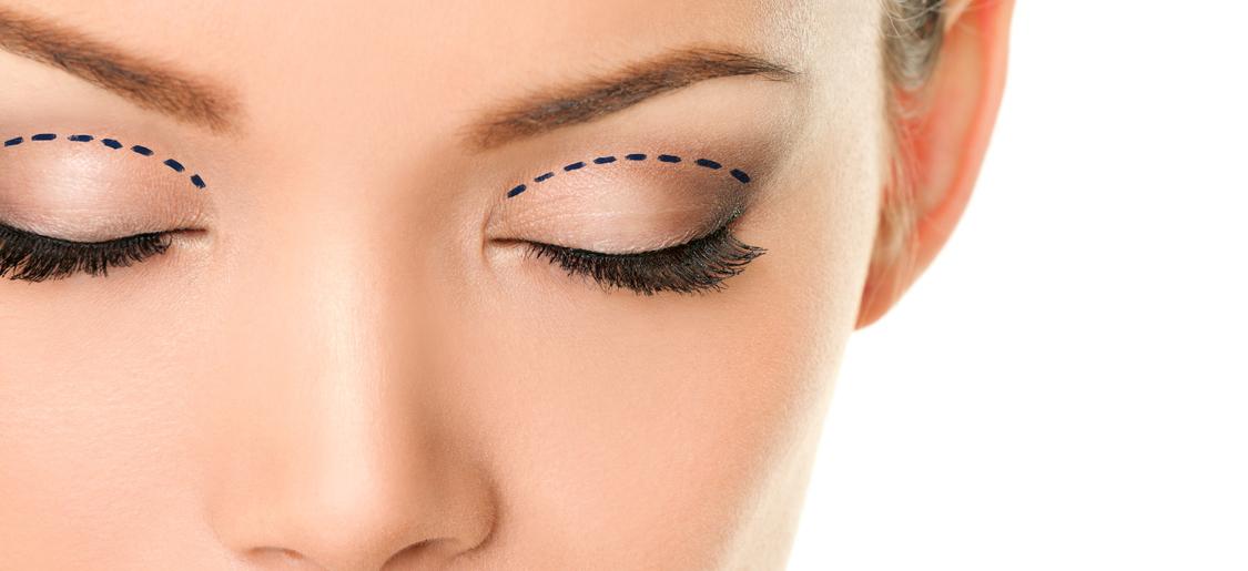 Ritrovare la bellezza dello sguardo con la blefaroplastica
