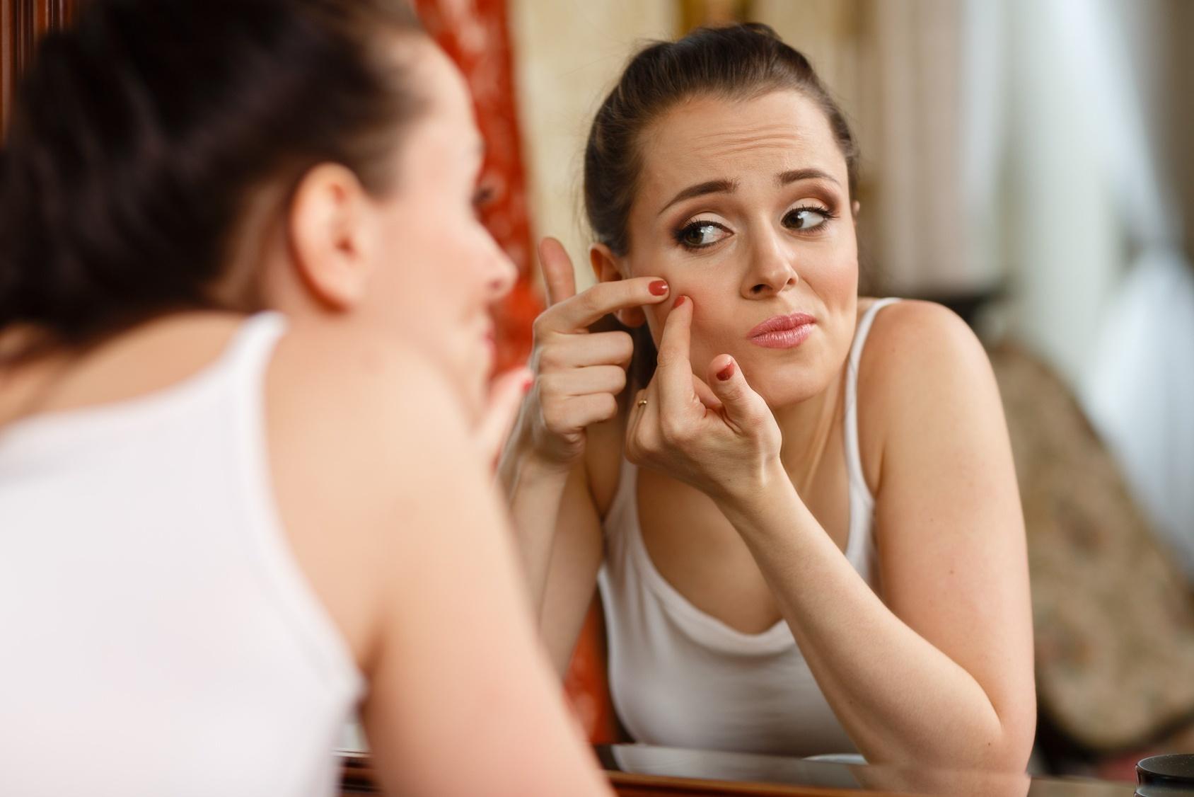 L' acne e il perché