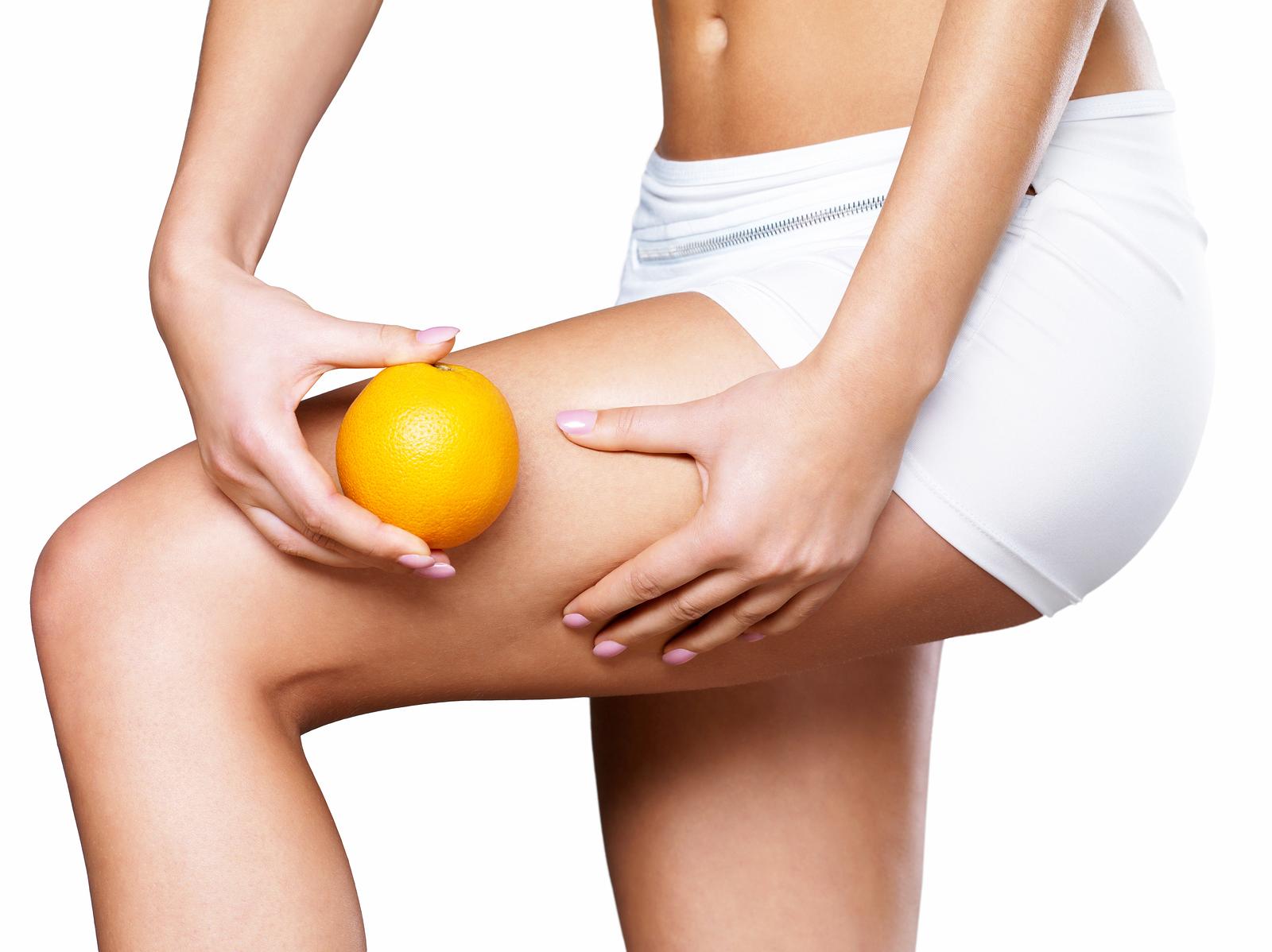 La cellulite: come sconfiggerla?