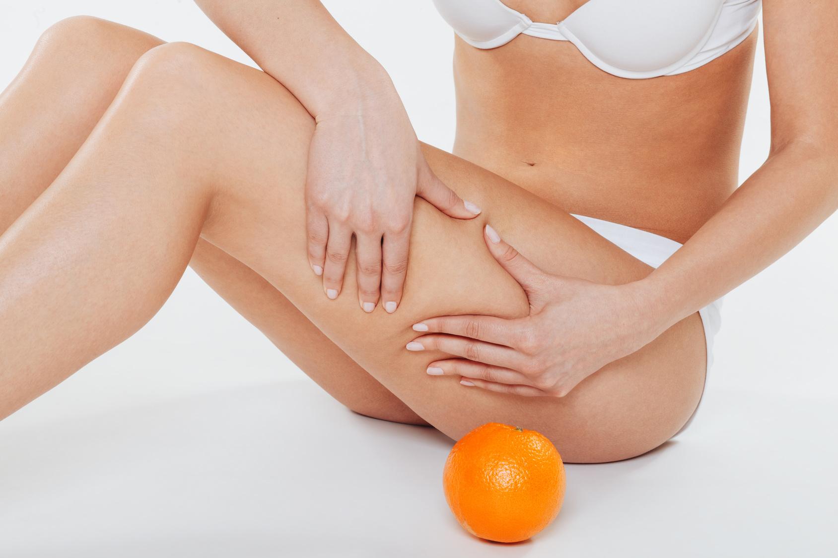 Come eliminare la cellulite dalle gambe