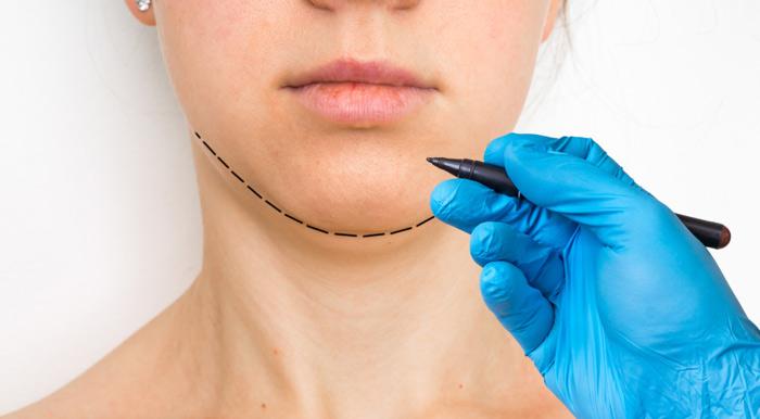 La chirurgia ortognatica