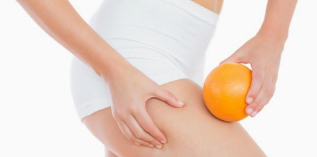 L'Elettrolipolisi per la cellulite