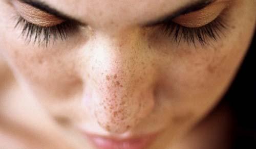 Eliminare le macchie del viso