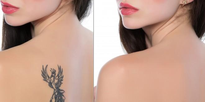 Le tecniche per eliminare i tatuaggi