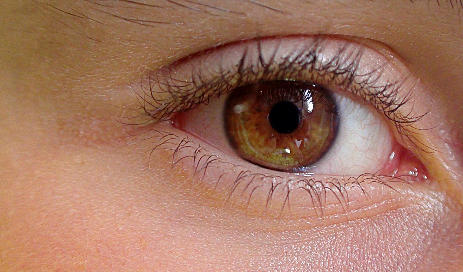 Come eliminare le borse sotto gli occhi?