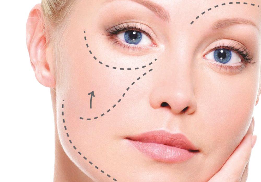 Fili biostimolanti: contrastare l'invecchiamento del volto in modo innovativo e sicuro