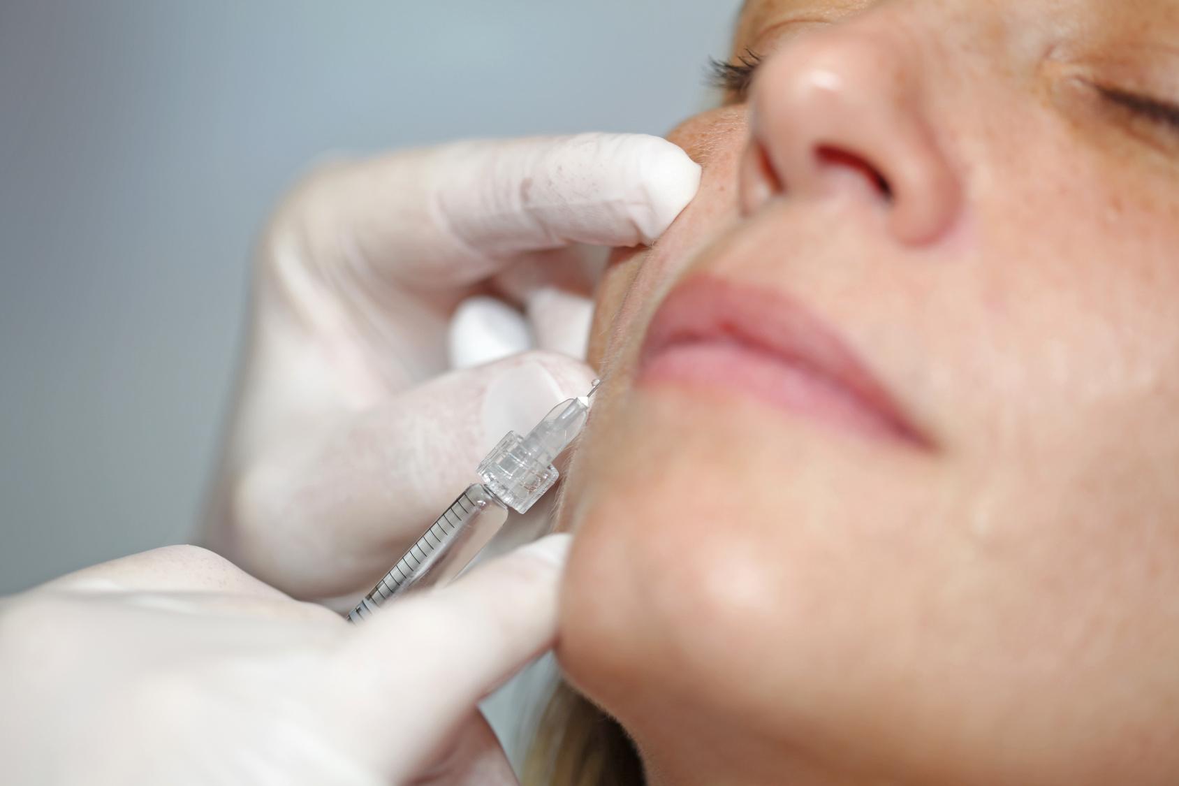 Il ringiovanimento del volto: con filler e ultime tecnologie