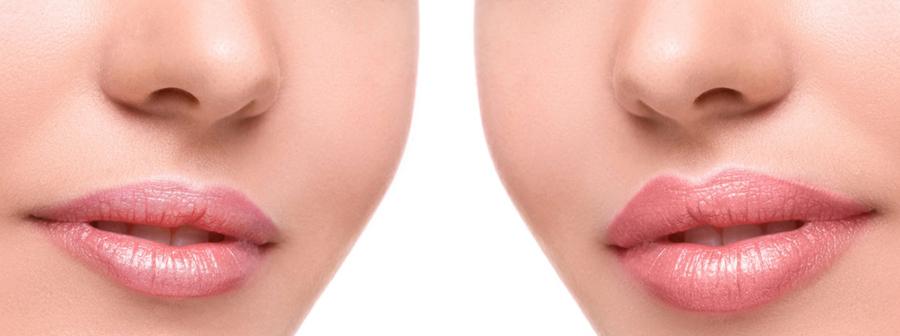 Come trattare le labbra? Contour and shape! Tutto ciò che serve