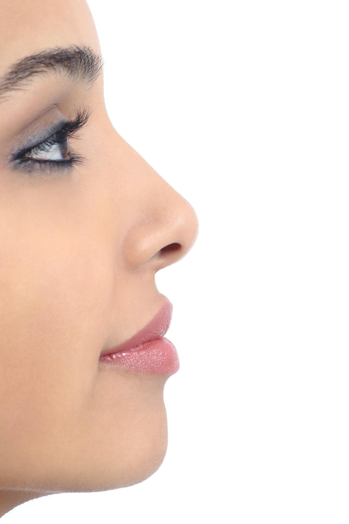 Profiloplastica: zigomi e naso perfetti a colpi di filler
