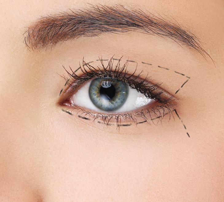Come eliminare cicatrice da trapianto capelli? - tanaka-project.biz