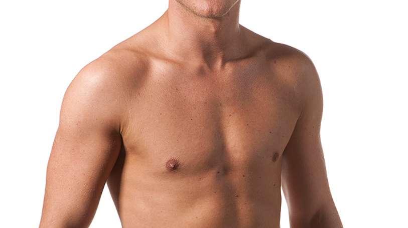 Ginecomastia: un intervento per donare virilità al torace maschile