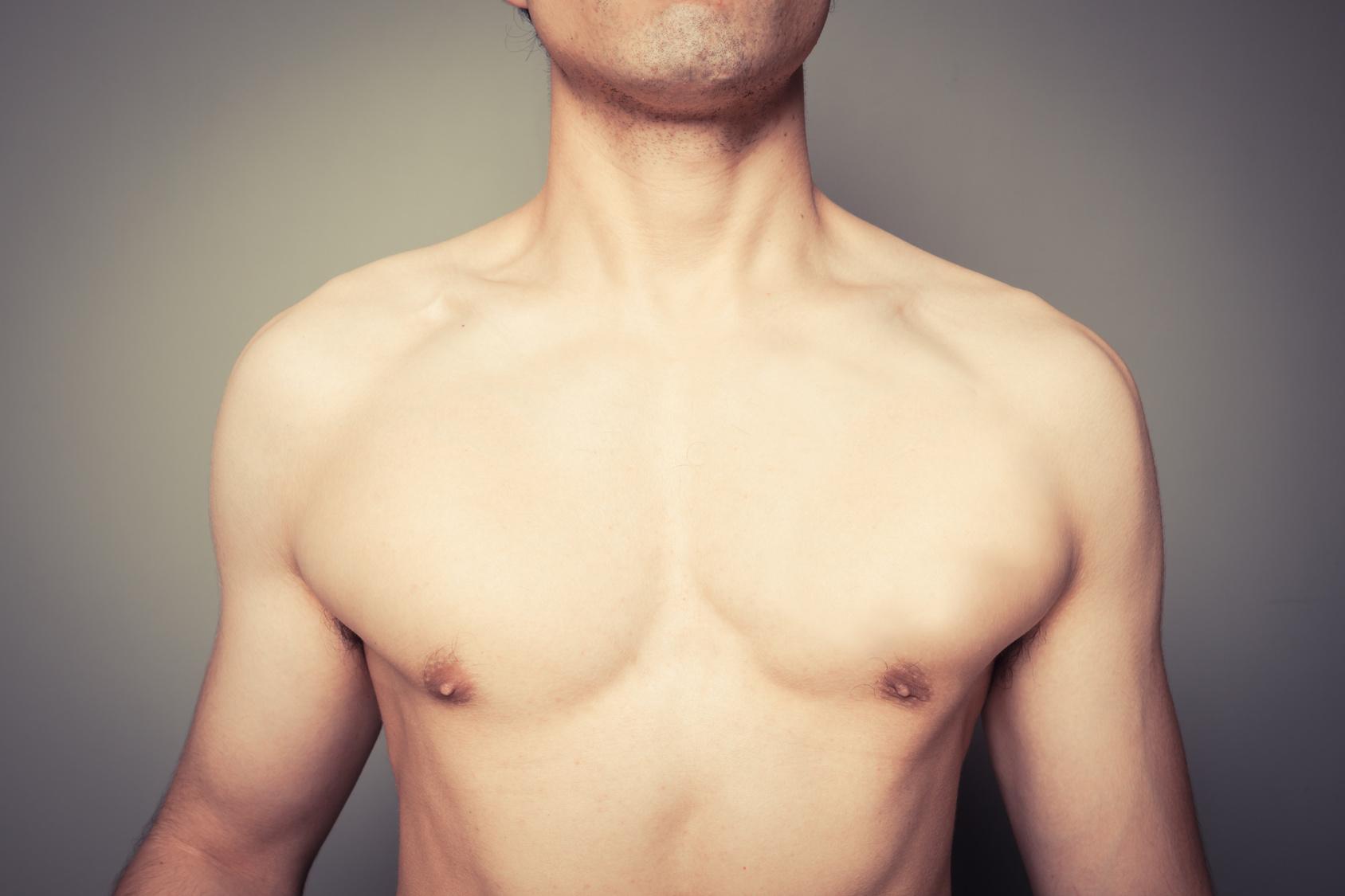 la Ginecomastia, cause e soluzioni