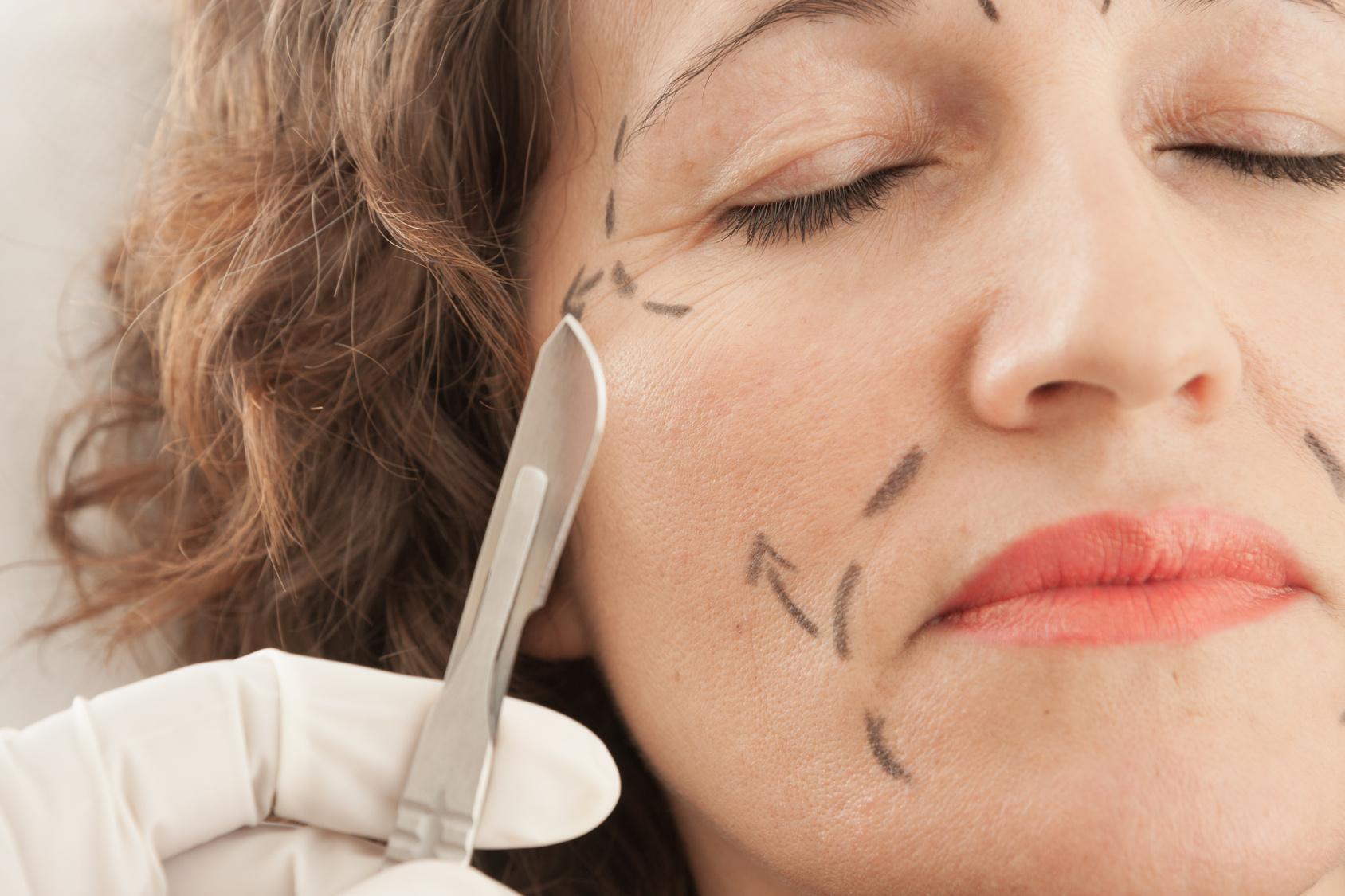 Intervento di blefaroplastica: ringiovanimento dello sguardo