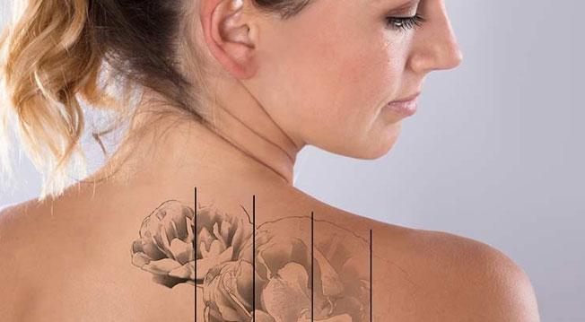 Tatuaggio, lobo, labbra, seno: intervento estetico e pentimento