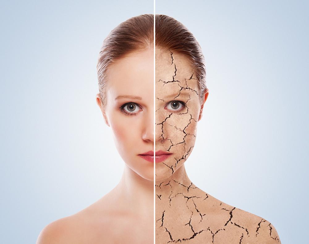 L'invecchiamento cutaneo da cosa è causato? Che cosa possiamo fare?