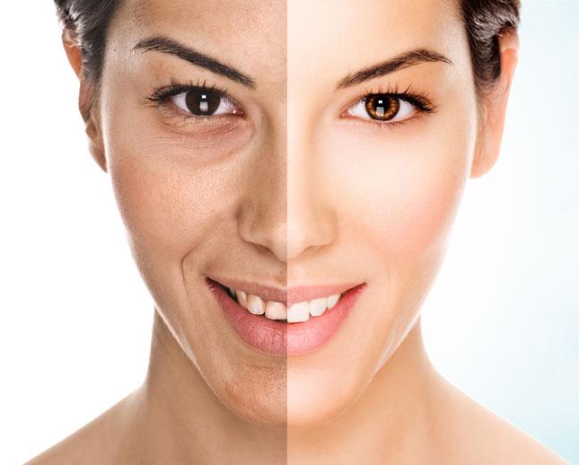 Perché misurare i segni dell'invecchiamento?