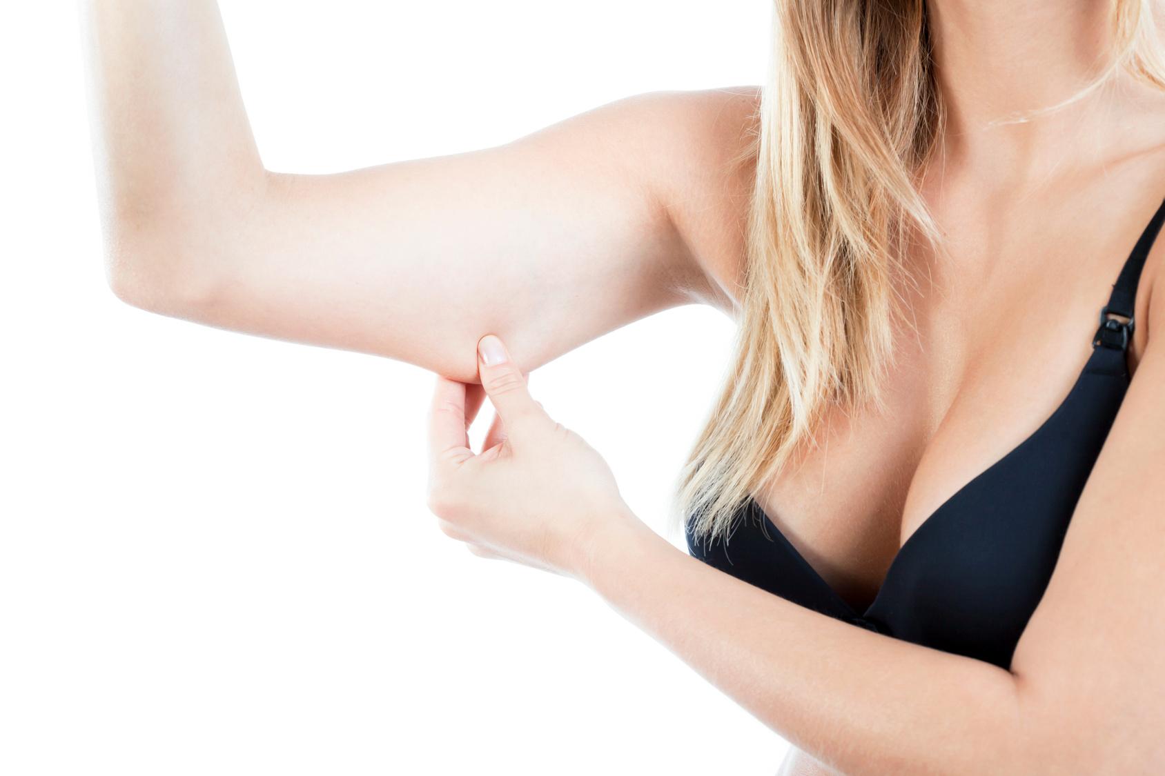 Lifting braccia? Rimodellale con la brachioplastica
