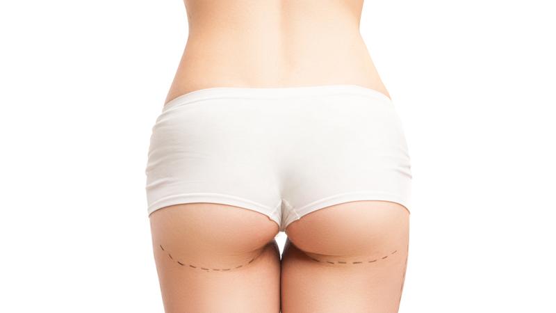 BAAPS: studio sull'aumento dell'interesse maschile al brazilian butt lift