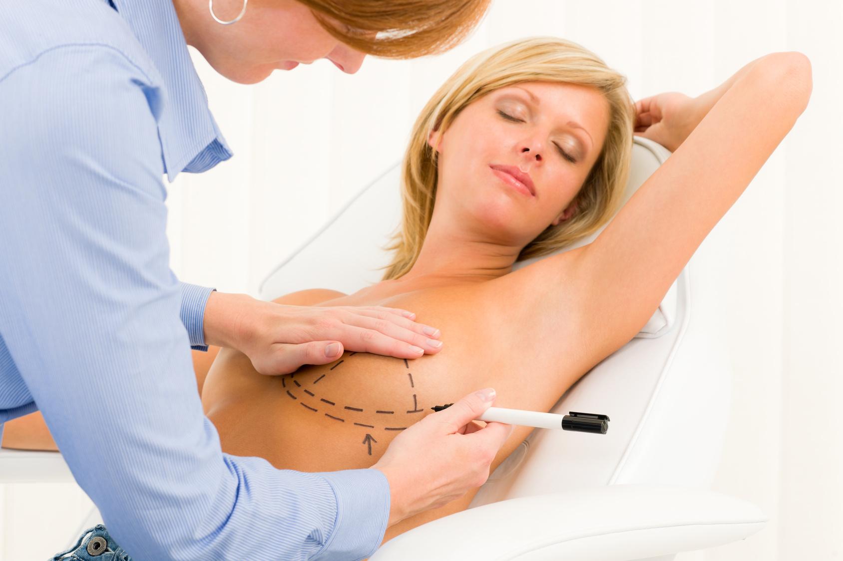 Quando il seno diventa un problema: la mastoplastica additiva