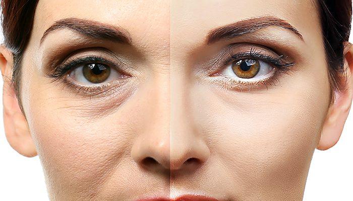 Trattamento occhiaie non chirurgico