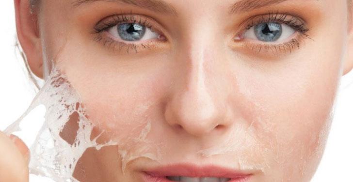Il peeling chimico viso