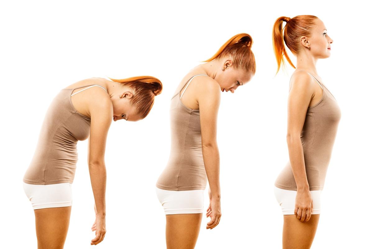 Postura e medicina estetica