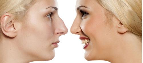 Come migliorare la forma del naso?