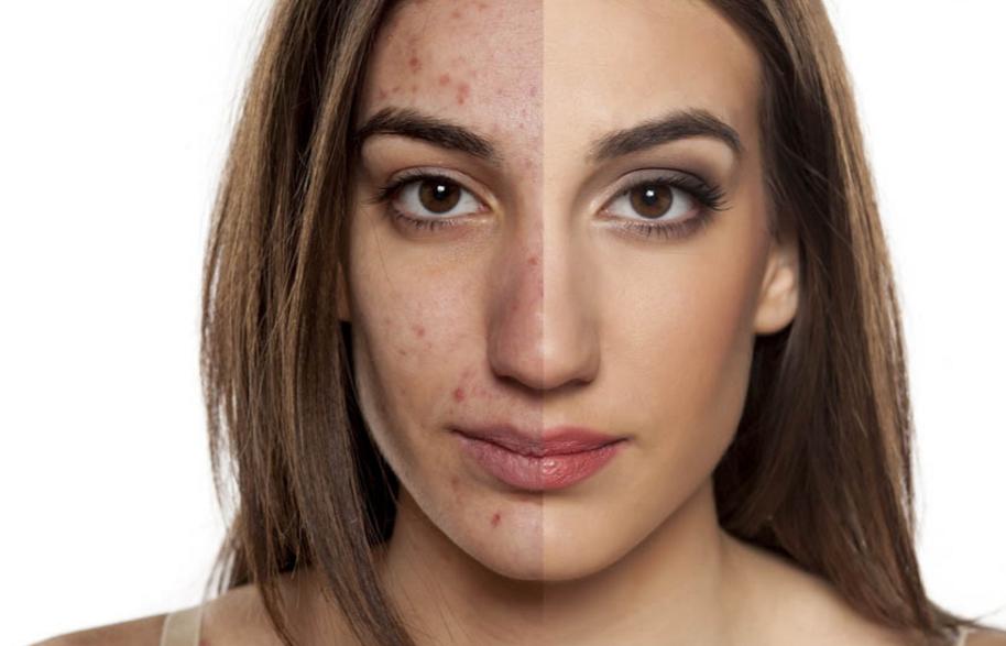Subcision per le cicatrici dell'acne