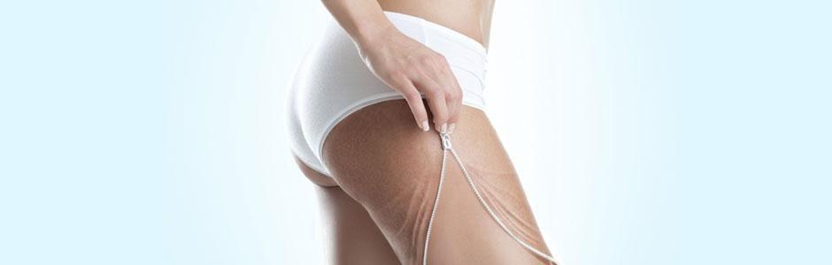 Advanced beauty Technologies: la cellulite ha perso l'immortalità