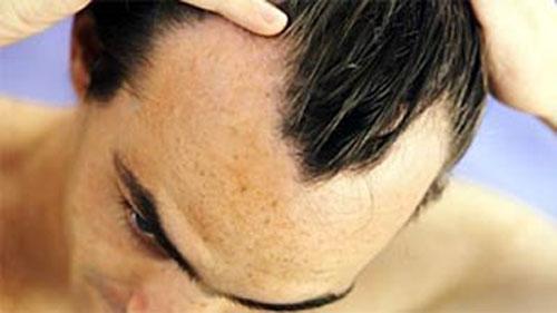 Trattamento PRP - La perdita dei capelli