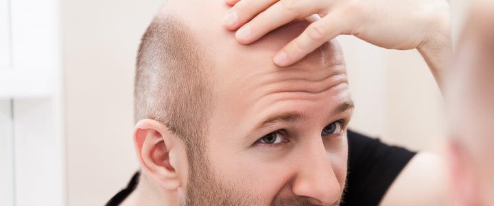 I vantaggi del trapianto robotico di capelli