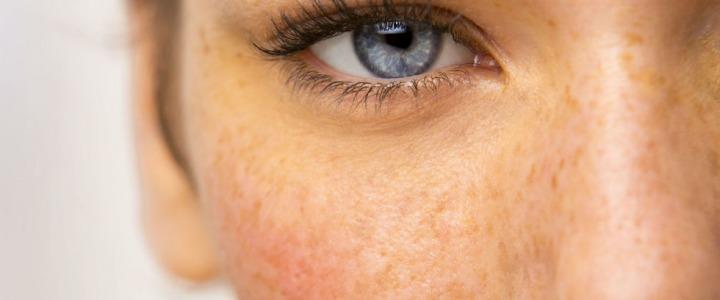 Iperpigmentazione della pelle