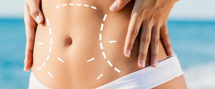 Body contouring: il trattamento per rimodellare il corpo, anche senza chirurgia