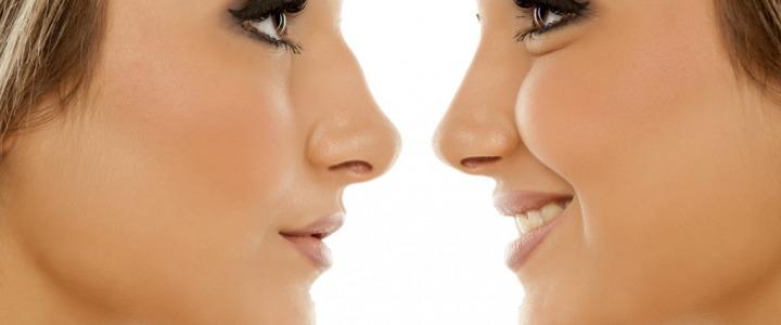 Tecniche innovative per la correzione del naso: quando il rinofiller rappresenta la soluzione?
