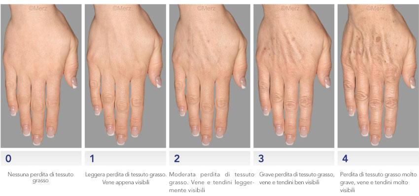 Conformazioni delle mani