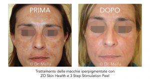 trattamento delle macchie iperpigmentate con zo skin health e 3 step stimulation peel