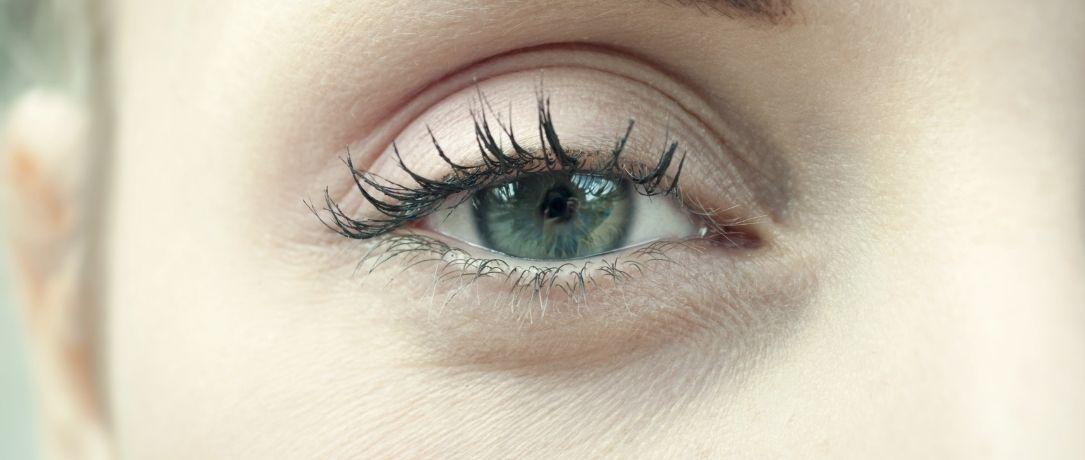 Occhiaie e filler