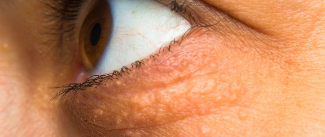 Xantelasmi palpebrali: cosa sono e come trattarli in medicina estetica