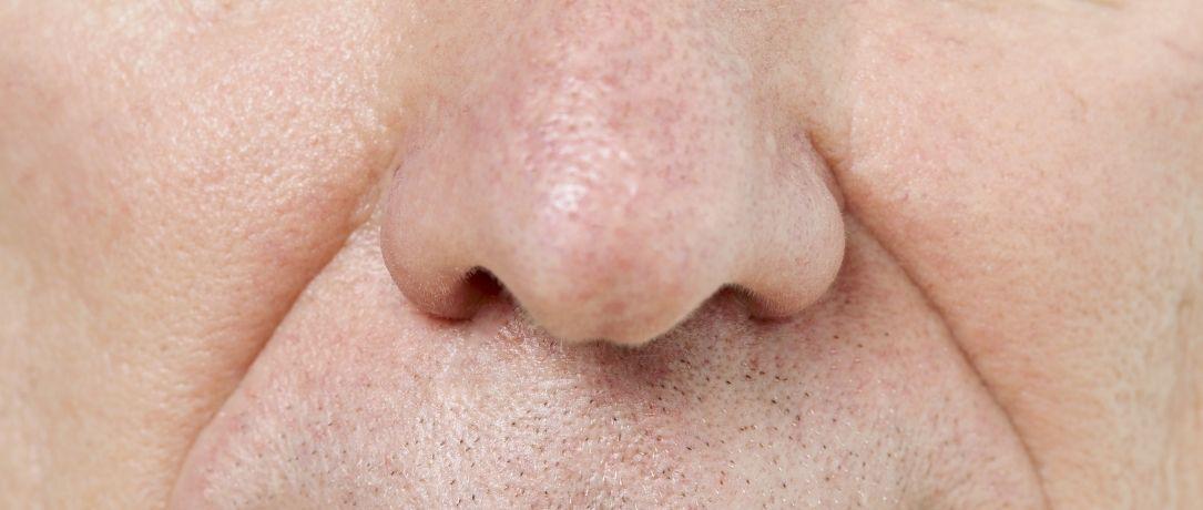 Trattamento del rinofima: addio al naso rosso, ingrossato e deformato