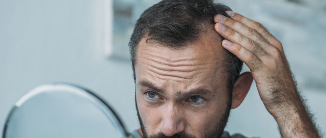 Alopecia androgenetica, cause e cure