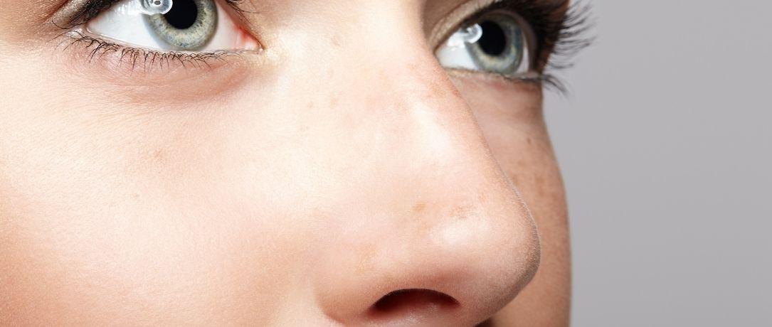 Rinofiller: miglioramento del profilo nasale con microiniezioni in 4 punti strategici