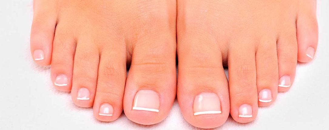 Micosi unghie o onicomicosi