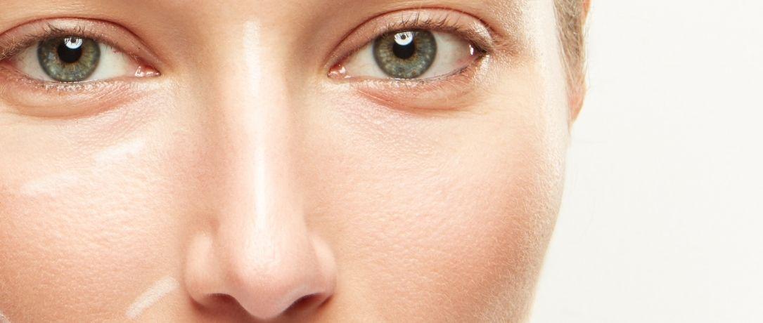 Rinofilling: rimodellare il naso senza bisturi