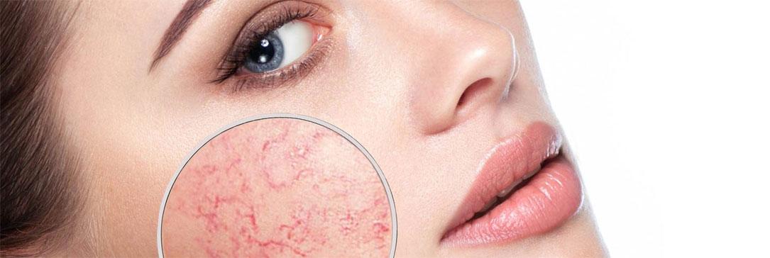 Rosacea: sintomi, cause, trattamento.