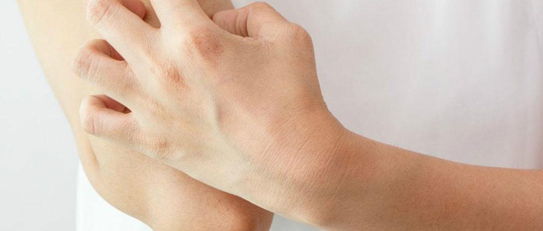 Eczema: cause e cura