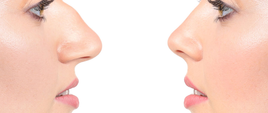 Rinofiller naso: trattamento non chirurgico
