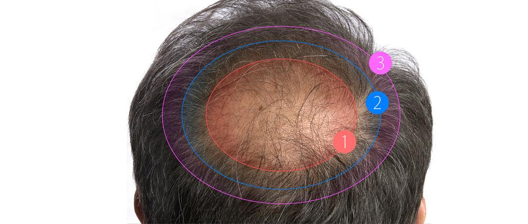 Trapianto capelli: l'autotrapianto non basta
