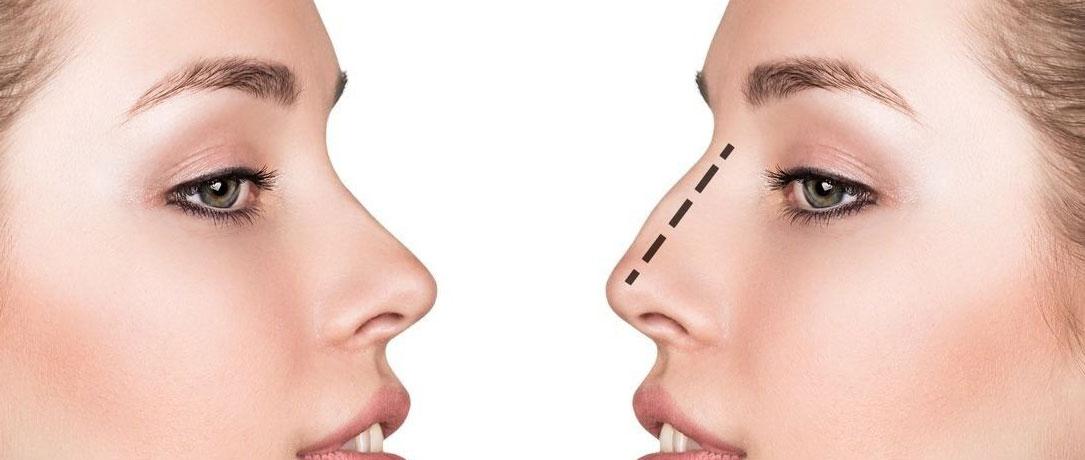 Setto nasale deviato: sintomi e trattamenti