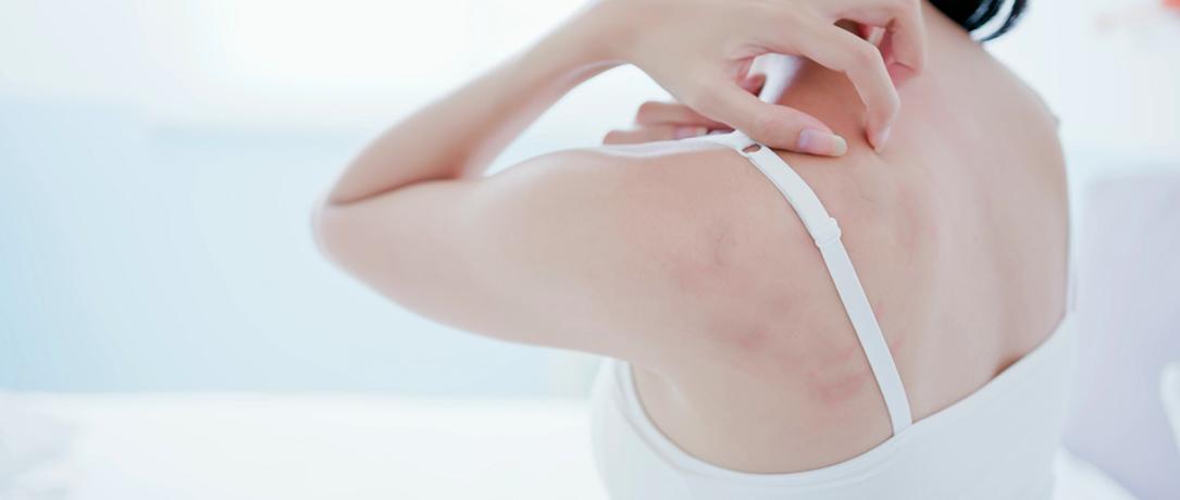 Xerosi cutanea: che cos'è, cause e cure